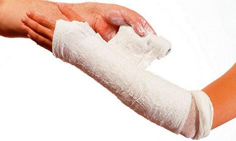 Наложение гипсового бинта на руку